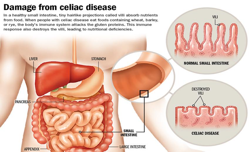 Celiac Disease Gastroenterology Consultants Orlando FloridaGastroenterology Consultants Orlando