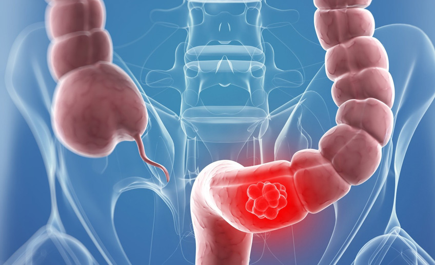 Colorectal Cancer Screening Gastroenterology Consultants Orlando Florida